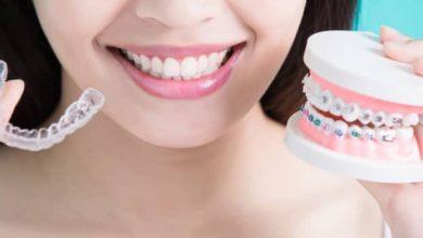 About-orthodontics