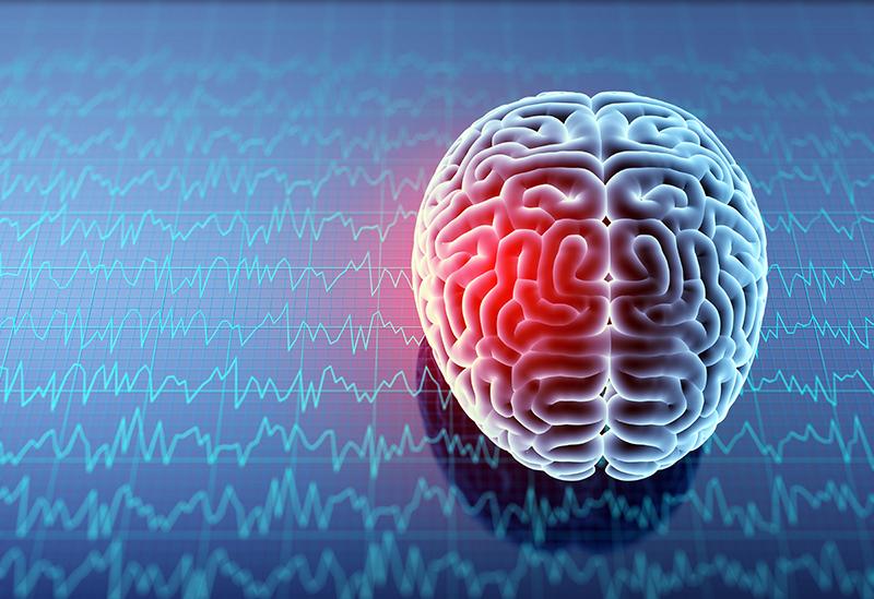 concussion management clinic