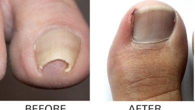 Surgery for ingrown toenails