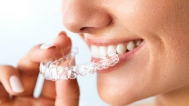 teeth whitening Singapore dentist